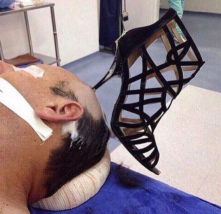 Pozor na ženy s topánkami na vysokých opätkoch