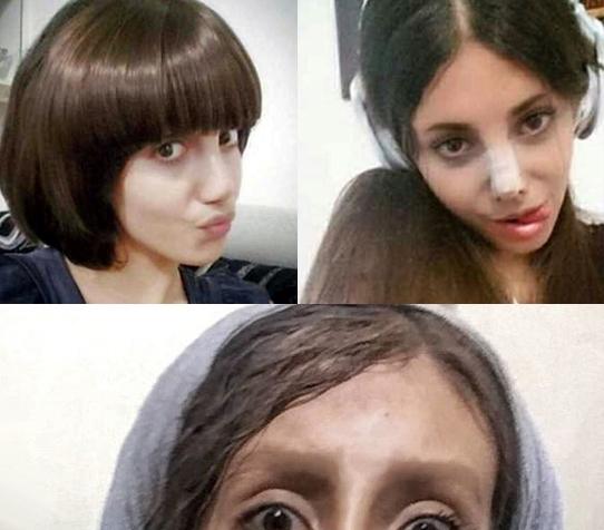 Keď chcete byť ako Angelina Jolie ale stane sa z vás zombie