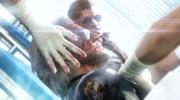 Lek�r pl�nuj�ci transplant�ciu hlavy chce �alova� Konami pre jeho vzh�ad v MGS5